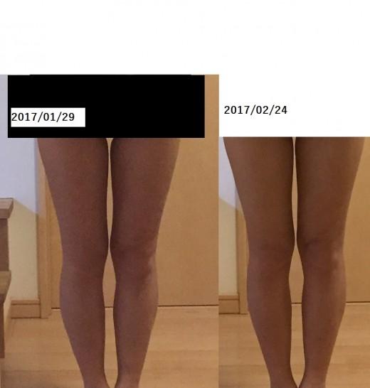 38歳子持ち主婦の足の太さ、ビフォーアフター
